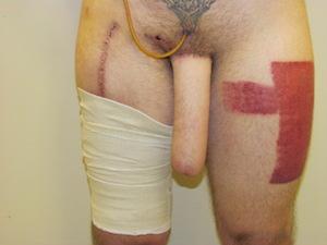 ALT Phalloplasty Photos of Results