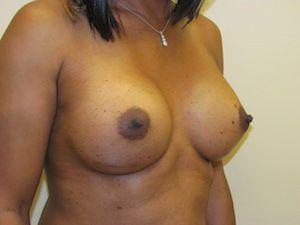 MTF Breast Augmentation Surgery Photos