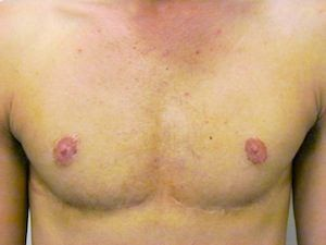 FTM Top Surgery - 1 year postop