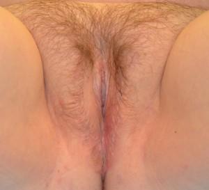 Vaginoplasty Photos