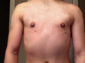 Keyhole Top Surgery Results