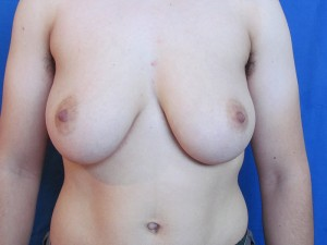 FTM Top Surgery Before and After Photos
