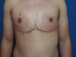 Double Incision Top Surgery Results